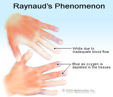 raynauds phenom