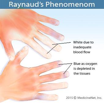 Raynauds